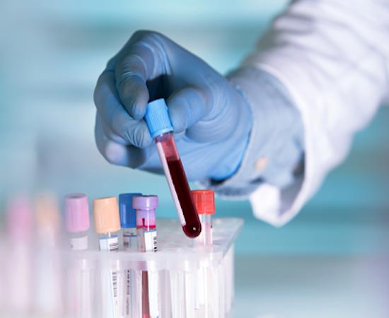 Laboratory technician testing a blood sample
